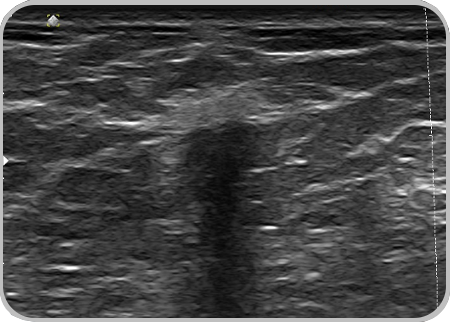 Ultrasound for Breast Care